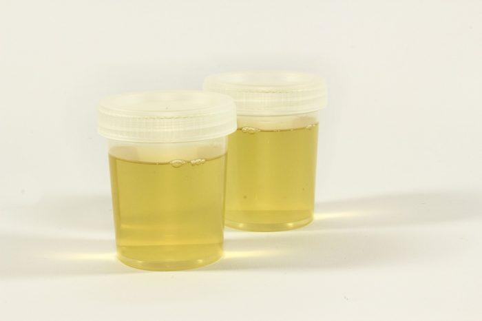 Simpatia amarrar homem com urina