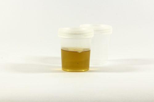 Amarração com urina na bebida